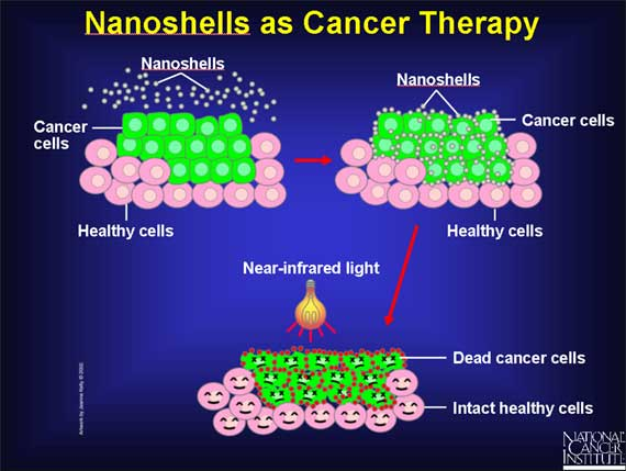 Nanoshells as cancer therapy
