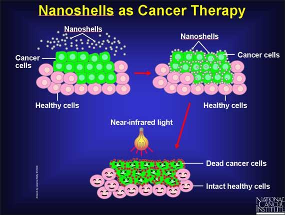 Nanoshells Used To Destroy Cancer Cells